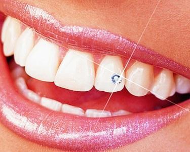 Colagem de Cristal no Dente