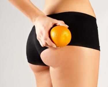 Reduz a Celulite - 6 Tratamentos