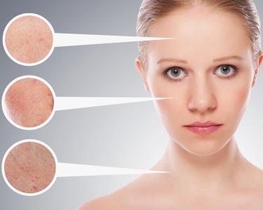 Avaliação Facial 3D! Limpeza, Peeling e Hidratação | Golden Care Porto
